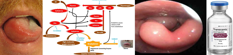 catadolone și dureri articulare